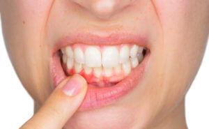 Лечение гингивита в стоматологии Киев Позняки Осокорки Сити Дент