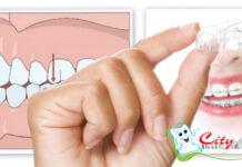 Детская ортодонтия в Киеве стоматология Сити Дент