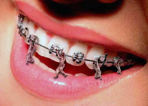 Стоматолог-ортодонт. Когда начинать лечение? Ортодонтия для взрослых