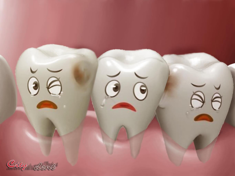 Лечение кариеса. Лечение зубов в Киеве на Позняках, Осокорках в стоматологии CityDent