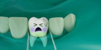 ДЛЯ ЧЕГО НУЖЕН КОФФЕРДАМ? Применение коффердама в Киеве в стоматологии Сити Дент