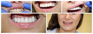 Портфолио стоматологических - Клиника CityDent на Позняках