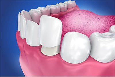 Что нужно знать перед тем, как сделать зубные виниры