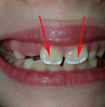 Почему на зубах белые пятна у ребенка?