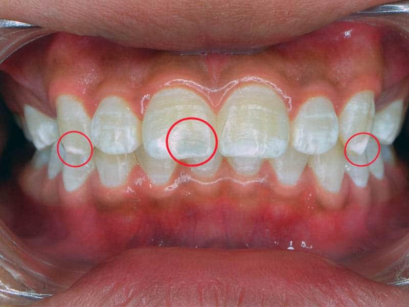 Почему на зубах белые пятна?
